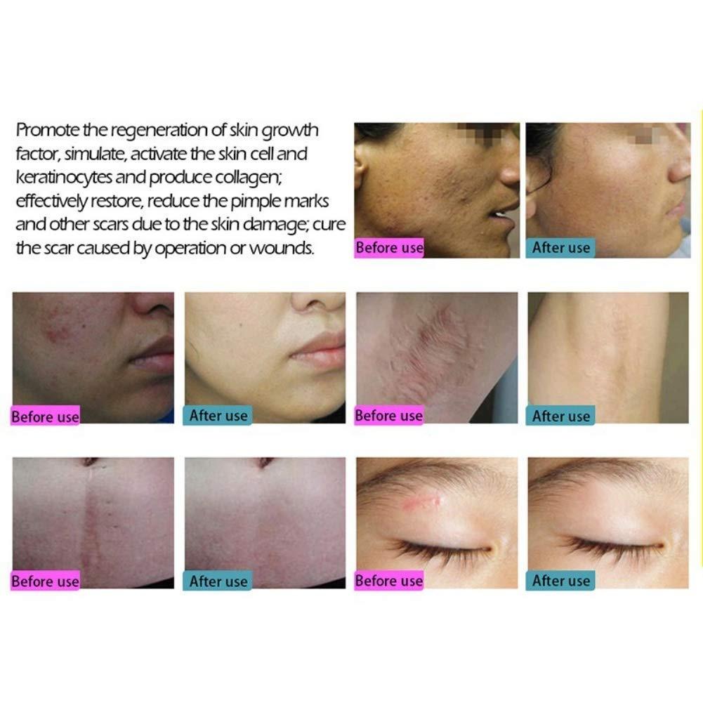 Scar Removal Cream Acne Treatment Cream Cell Repair Factor Skin